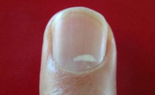 ایا میدانستید که لکه های سفید ناخن نشاندهنده چیست؟